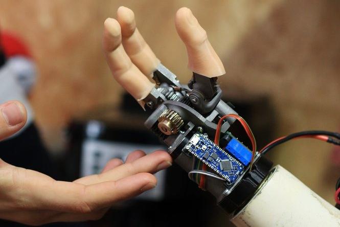 Prosthetic myoelectric hand